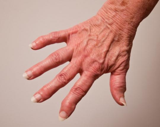 Арторзна болест - шипове